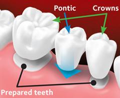 Custom-made bridge is placed over the prepared teeth