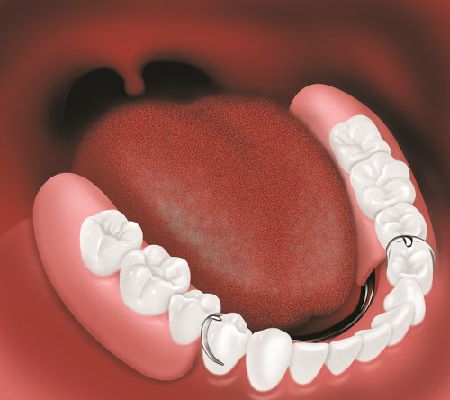 "Partial denture in place resting on ""anchor"" teeth and gums"