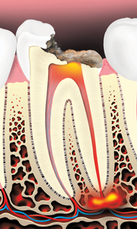 Tooth decay can cause an abscess (infection)
