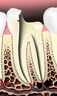 Pulp is removed and the root canals are cleaned and shaped