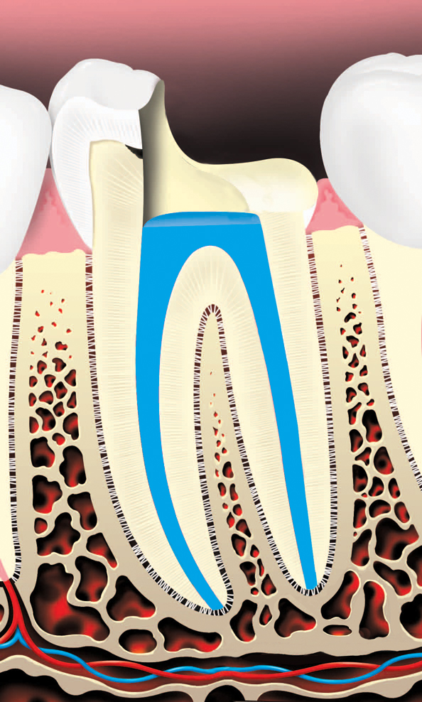 Root canals and pulp chamber are filled