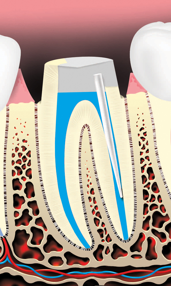 Metal or plastic rod or post placed in root canal to help retain the core (filling) material, which supports the restoration (crown)