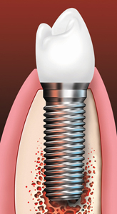 Dental implant and implant crown