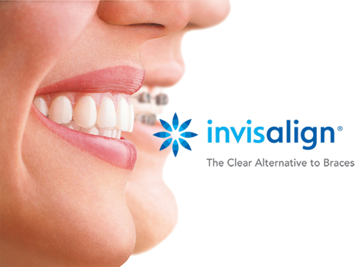 Invisalign® and Orthodontics