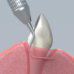 Scaling removes plaque and tartar from below the gumline