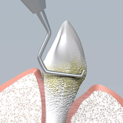 Root planing will smooth the tooth root and help the gums reattach to the tooth