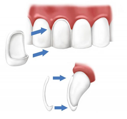 Veneer thinness and location on tooth.